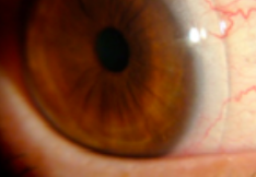 Eye with scleral lenses