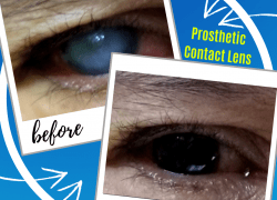 Prosthetic Contact Lens Can Help With Scarred Eyes