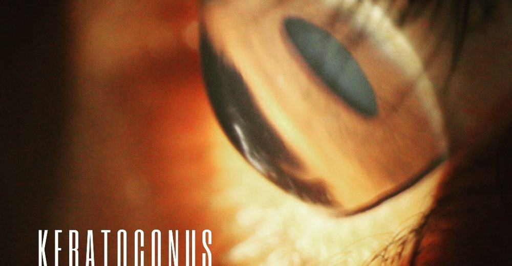 Image of an eye with keratoconus